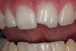 chipped teeth, Los angeles Chiropractor